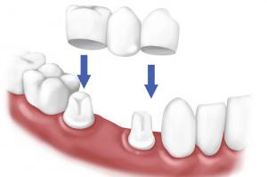 Giấy phép hoạt động đối với dịch vụ làm răng giả